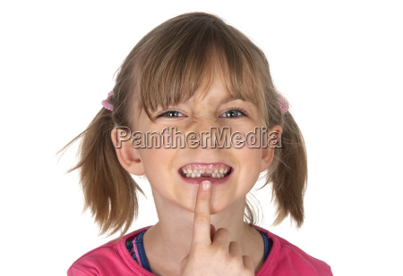 maedchen zeigt zahnluecke